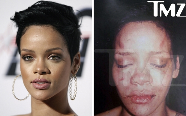 Rihanna Robyn Rihanna Fenty...** FILE **In this combination file photo, Rihanna arrives at the Clive Davis pre-Grammy party in Beverly Hills, Calif. on Saturday, Feb. 7, 2009, left, and in this undated photo provided by TMZ, Rihanna is shown after she was beaten, according to TMZ. Chris Brown briefly appeared in court Thursday, March 5, 2009, hours after he was charged with two felonies stemming from what a police detective describes as a brutal argument between the singer and his girlfriend, Rihanna. (AP Photo/Matt Sayles and TMZ) NO SALES **